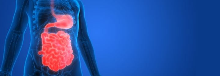 Is Leaky Gut the Source of Your AutoImmune DIsease? - Optimum Health Report #370