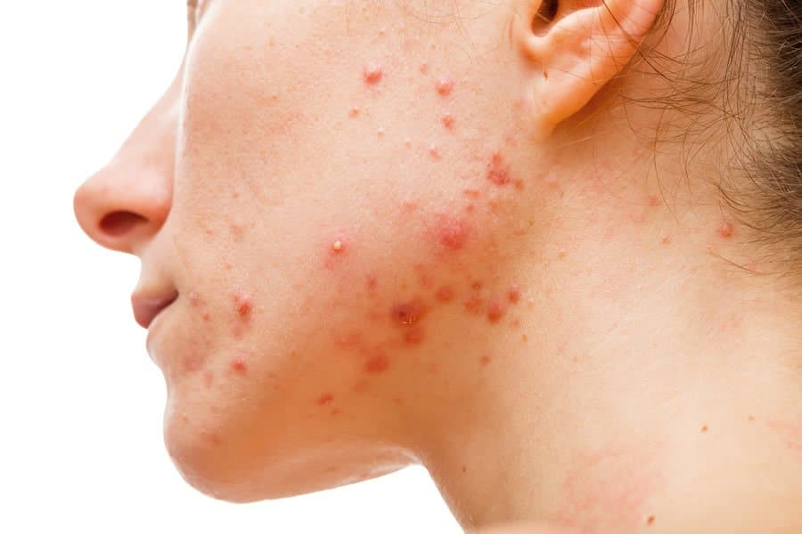 A patient's face with severe acne. We provide natural acne treatment