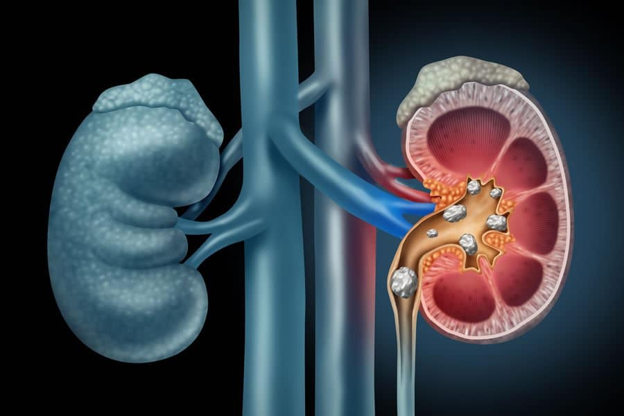 Kidney stones symptoms, causes and alternative treatment