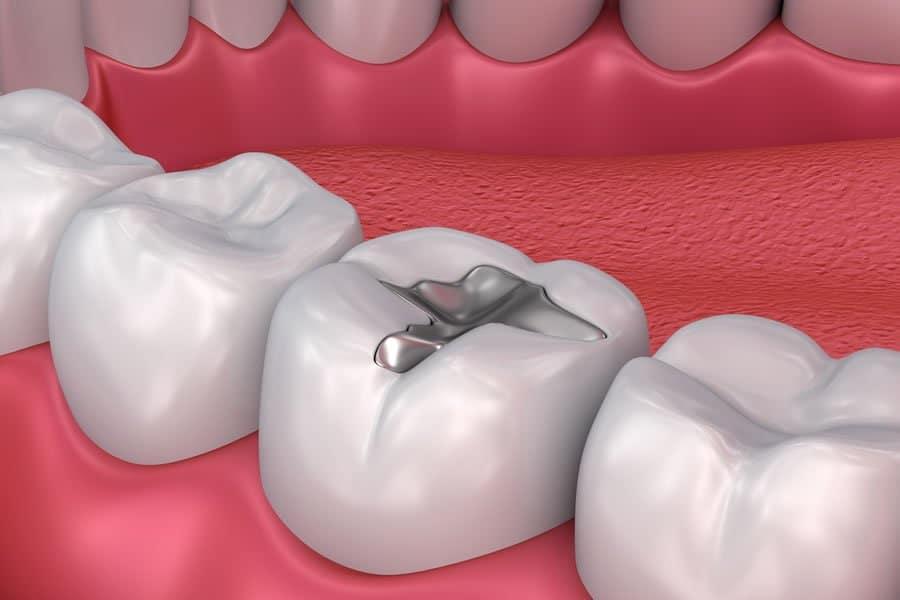 Amalgam fillings causing Mercury Poisoning