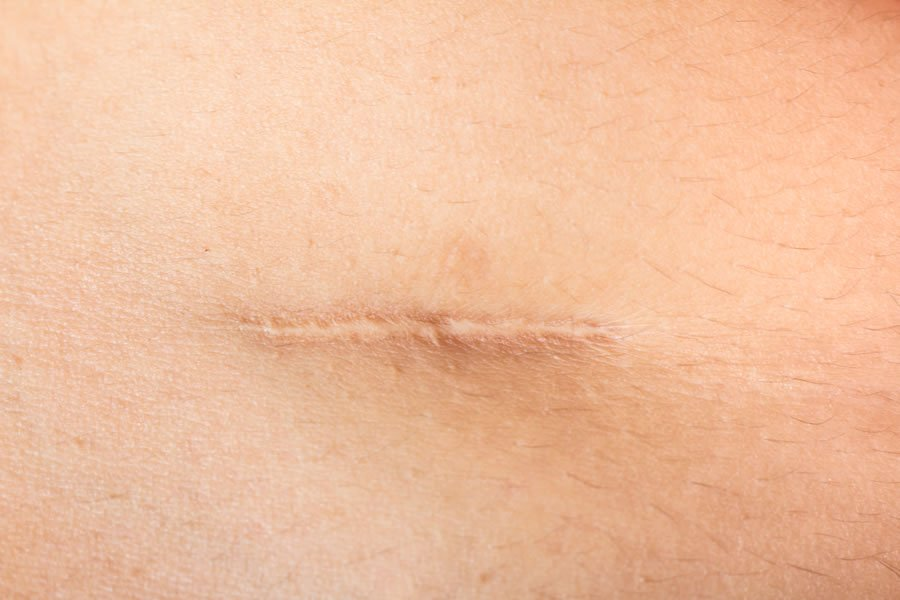 Close-up  of a scar that can be treated with neural therapy