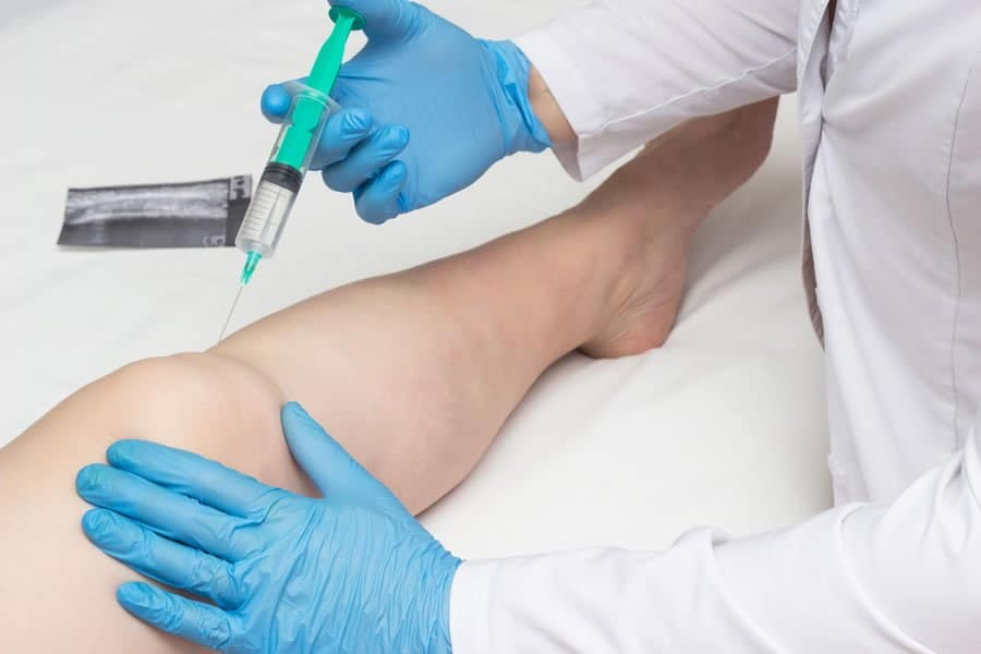Patient receiving Prolozone injections for joint pains