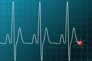 Heart Waves - Ozone Therapy affect the ejection fraction in the heart