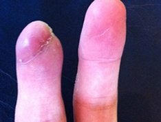 A LifeWorks patient's recovering fingers after a nasty accident