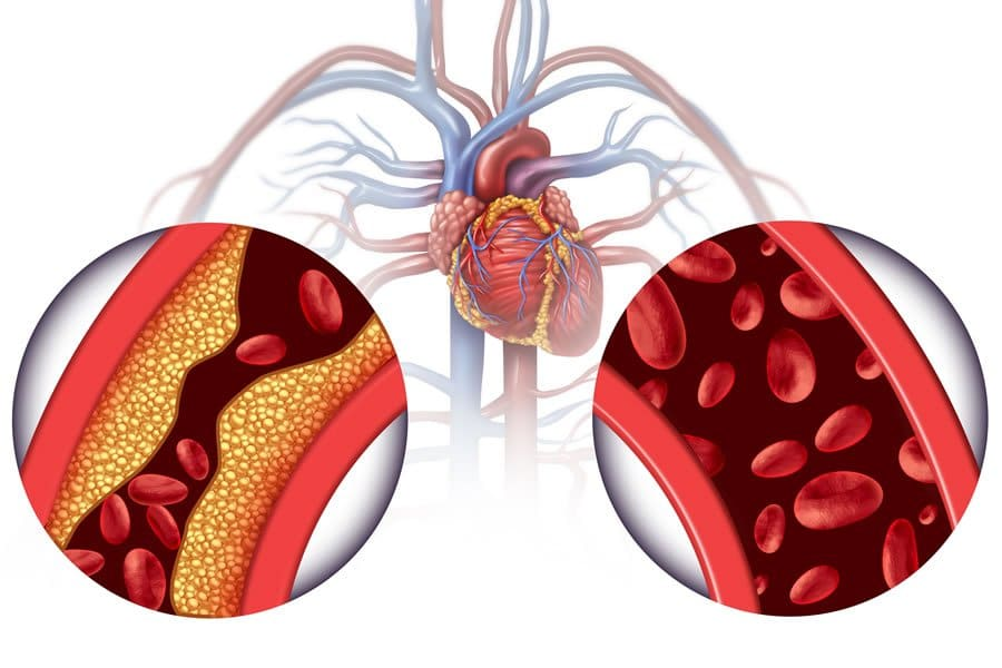 heart disease & chelation