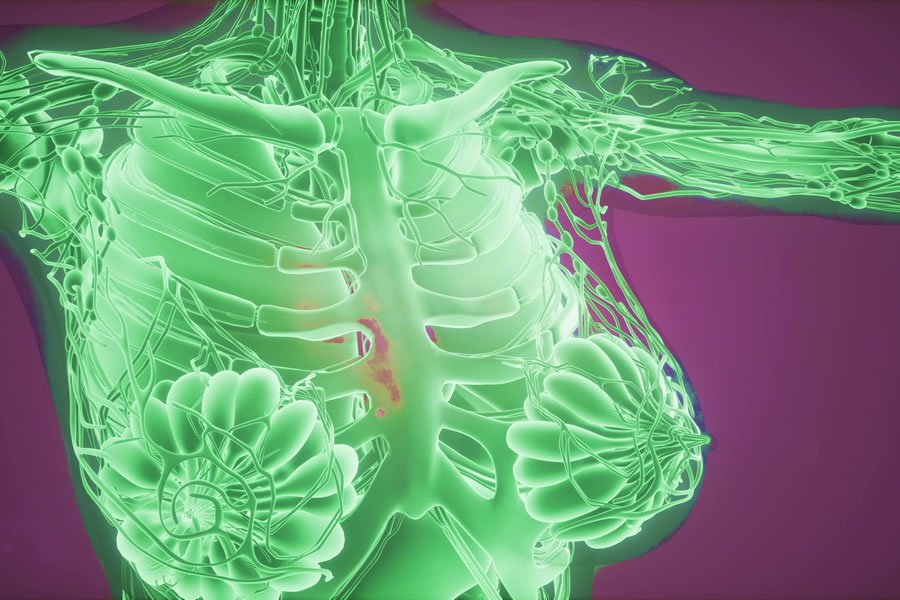 Cancer Causes, Types and Natural Treatment options available at LifeWorks