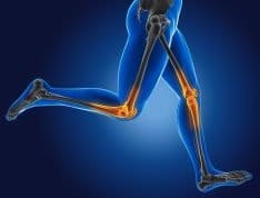 Infographic of aches and pains in the legs that can be cured with PEMF therapy