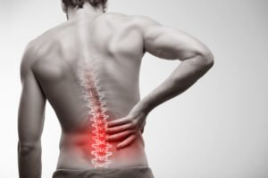 Patient with lower back pain issues. We treat lower back pain naturally at LifeWorks