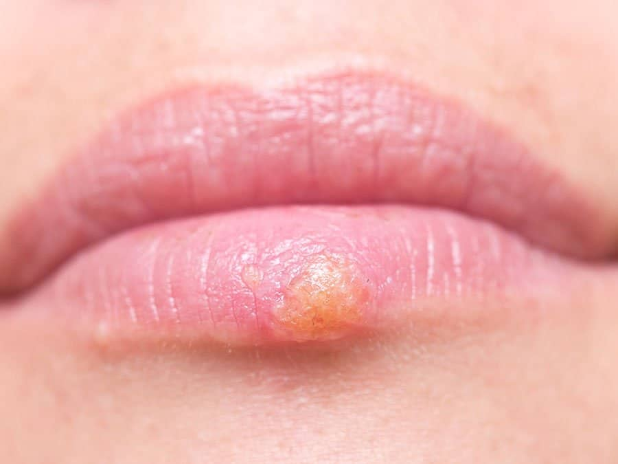 Image of a patient's swollen lips, because of herpes