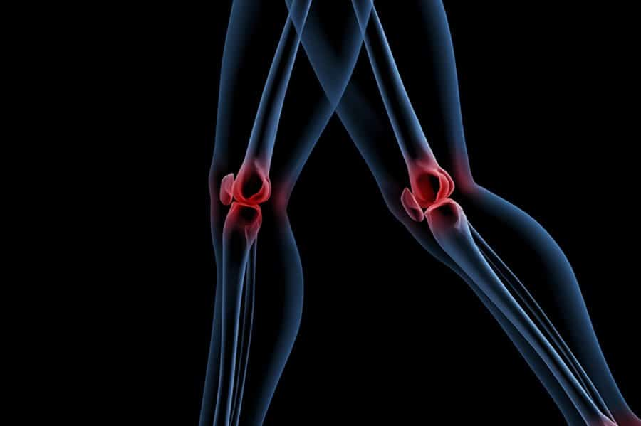 We treat knee pain successfully and naturally with Prolozone