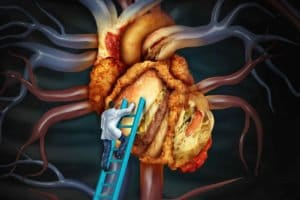 the heart organ. We offer treatment for high cholesterol