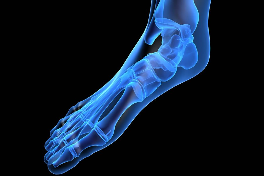 prolozone foot pain