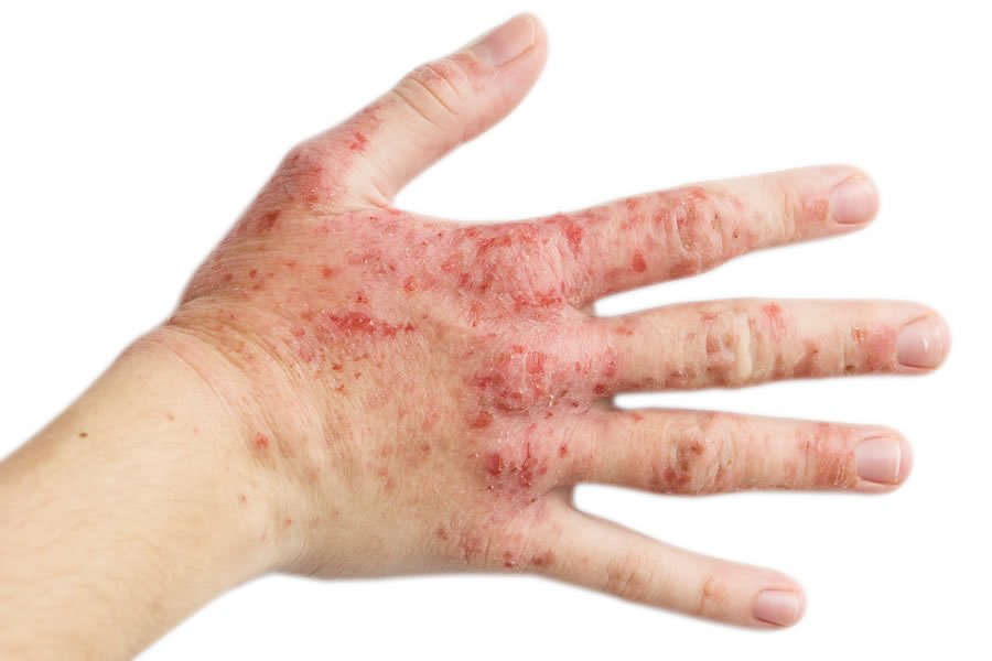 The hand of a person suffering from Eczema. We offer efficient eczema therapies