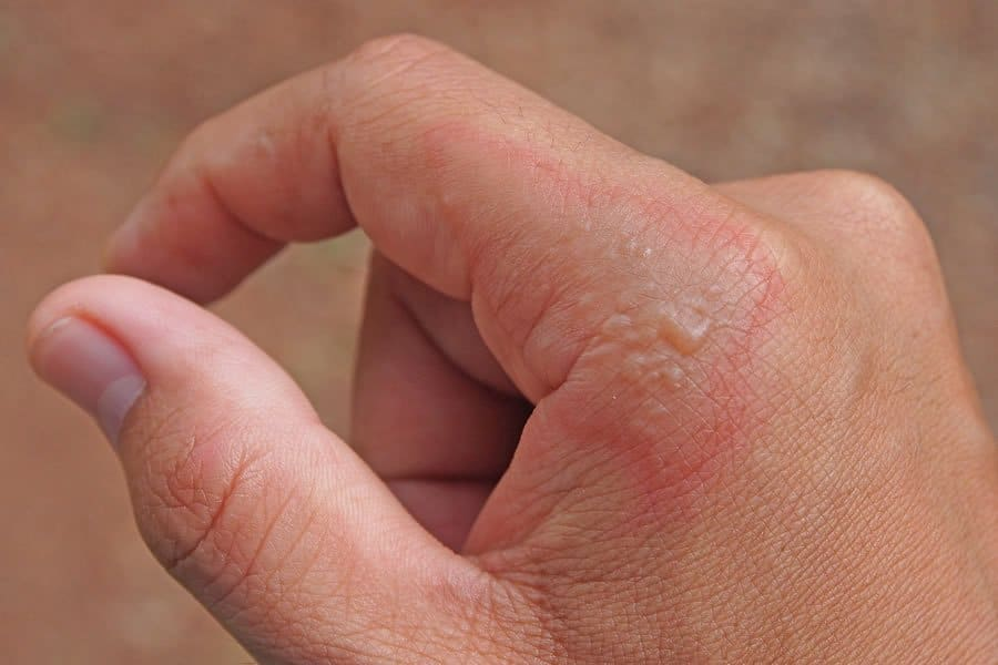 Image of the hand of a person suffering from Impetigo
