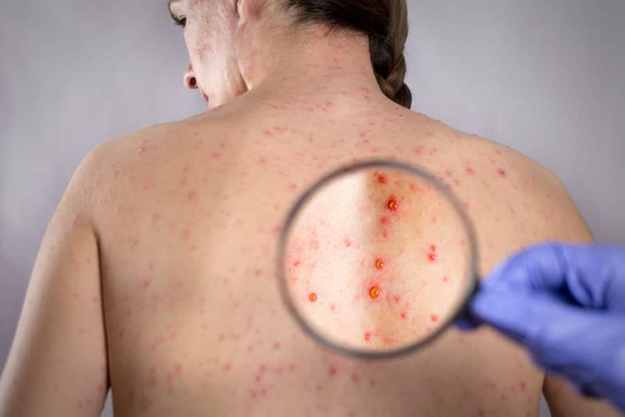 Image of a back of a woman suffering from shingles