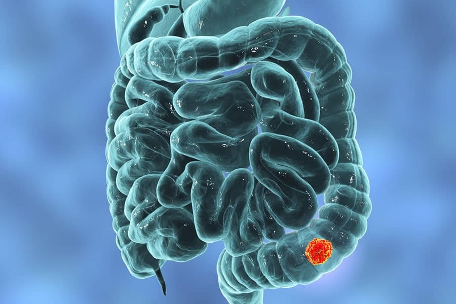 Natural Colon Cancer Treatment