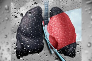 Cancerous lung needing holistic lung cancer treatment