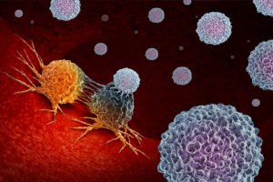 LifeWorks offering natural Neuroendocrine Cancer Treatment