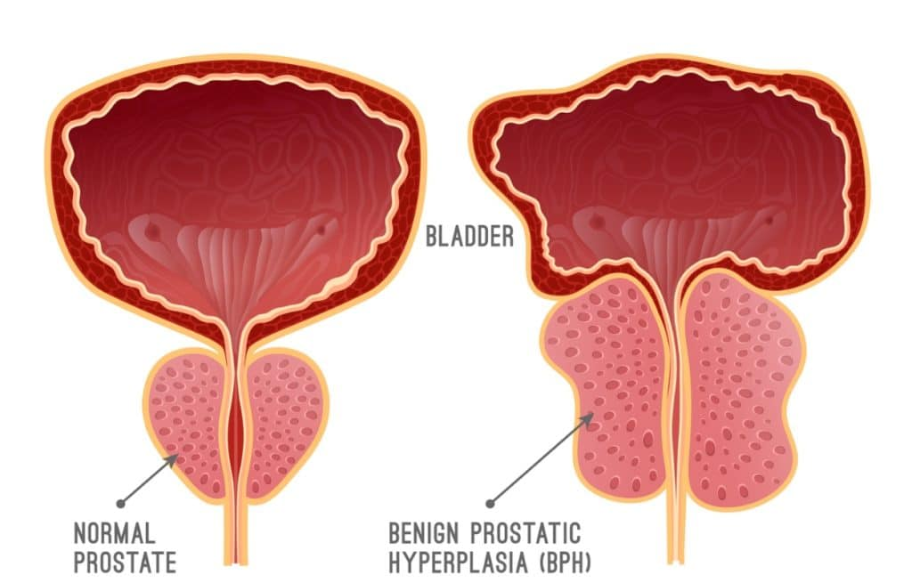 Learn about natural treatment options for Benign Prostatic Hyperplasia (BPH) from LifeWorks Wellness Center, the top natural health clinic in the US.