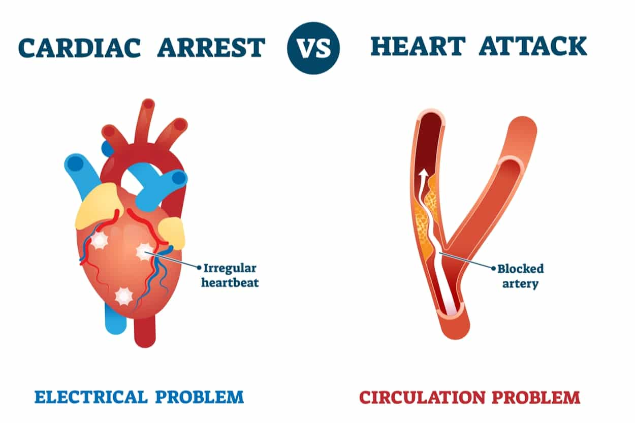 The Difference Between A Heart Attack & Cardiac Arrest