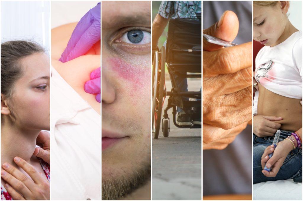 the 6 most common autoimmune diseases ranked.